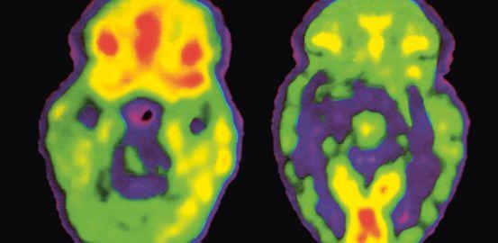 Aux origines de la schizophrénie