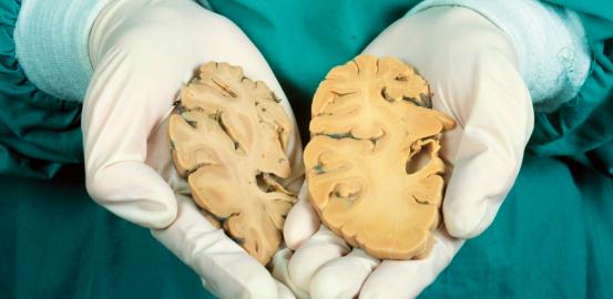 Alzheimer: le casse-tête des chercheurs